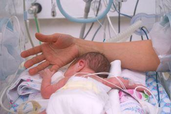دو نوزاد دوقلو زودتر از موعد نیاز به زایمان داشته اند.(نوزاد پسر)