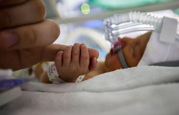 فرهاد ۷ماهه برای جراحی ترمیم کلستومی در بیمارستان بستری شده است.