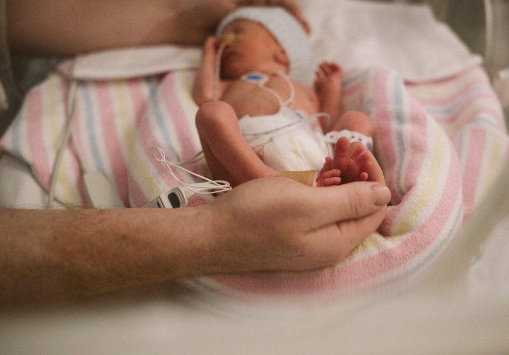 نوزاد مبتلا به فتق کشاله ران می باشد.