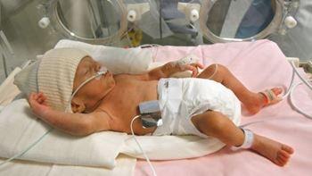 تسنیم تازه متولد شده به علت عفونت خون و پایین بودن پلاکت خون در بیمارستان بستری شده است.