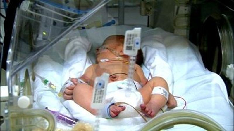 محمد ۴ماهه مبتلا به پنومونی می باشد.