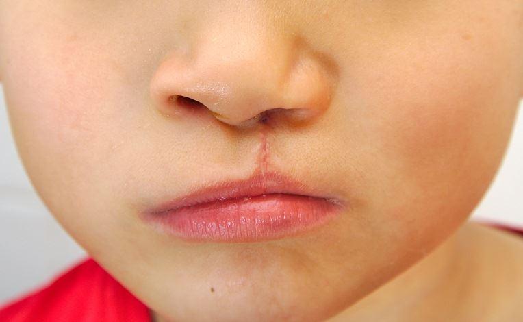 کارن چهارساله به دلیل شکاف لب بستری شده است.