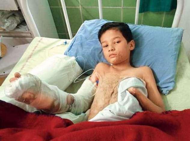بنیامین 11ساله دچار برقگرفتگی و سوختگی شده است.