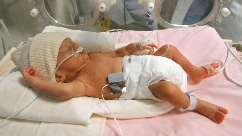 نوزاد دوماهه به دلیل نارسبودن بستری شده است.