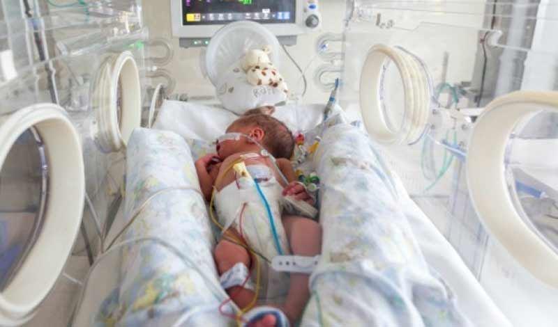 نوزاد تازه متولد به دلیل دیسترس تنفسی بستری شده است.
