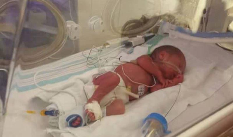 سبحان تازه متولد به دلیل نارسایی قلبی ریوی بستری شده است.