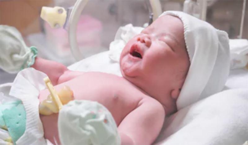 نوزاد تازه متولد به دلیل نارس بودن بستری شده است.