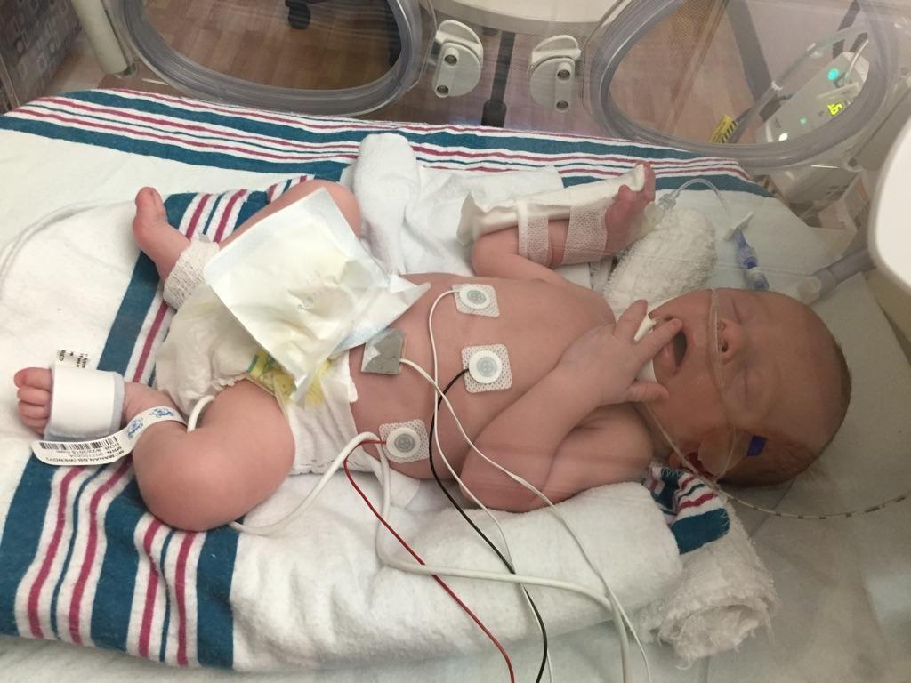 امیرکیان تازهمتولد به دلیل نارسایی قلبی ریوی بستری شده است.
