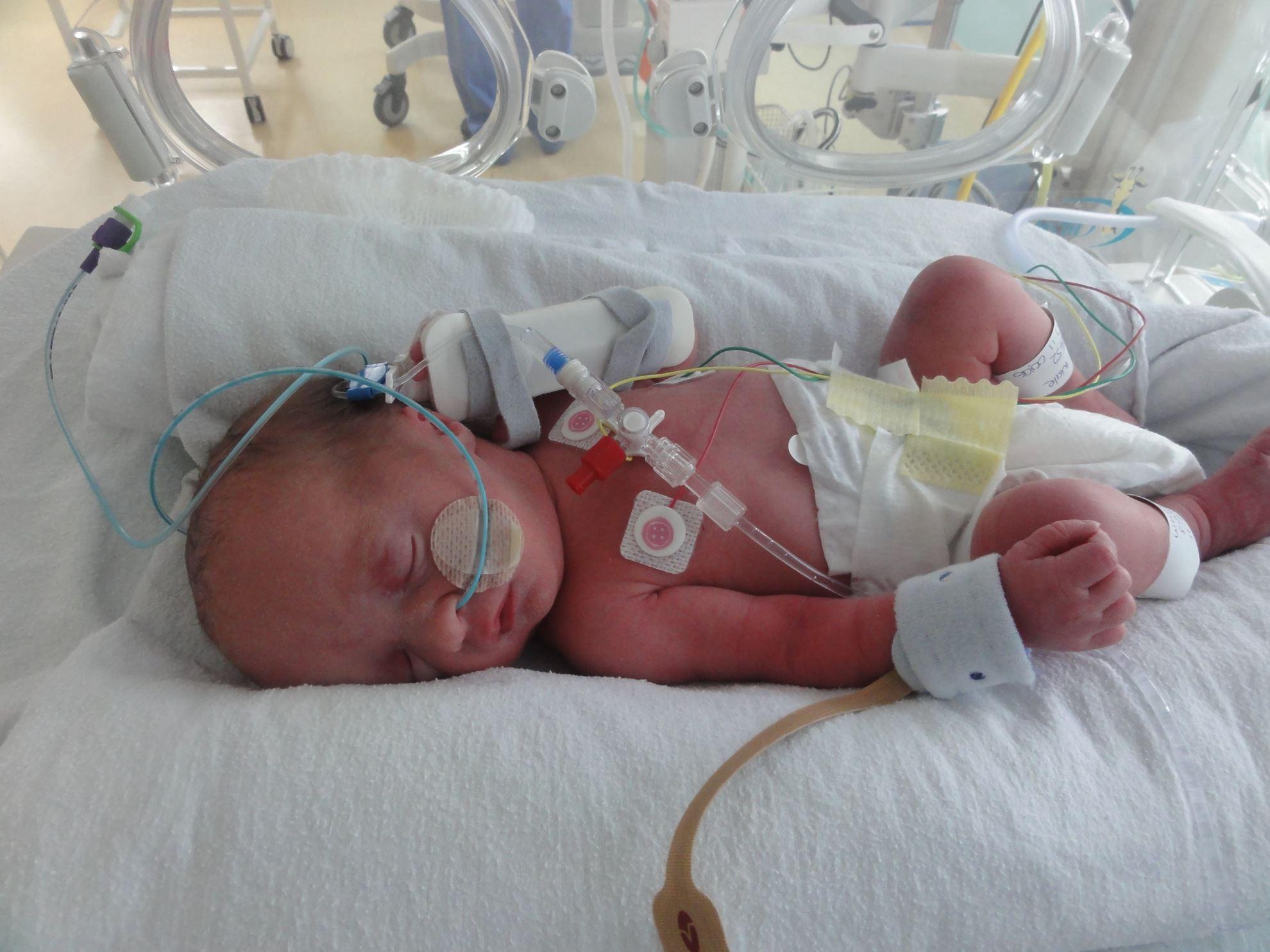 نوزاد تازهمتولد به دلیل دیسترس تنفسی بستری شده است.