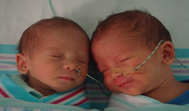 نوزاد تازهمتولد(قل2)به دلیلنارس بودن بستری شده است.