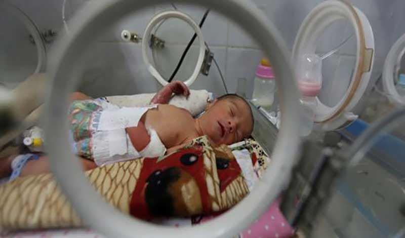 نوزادتازه متولد به دلیل نارسایی ریوی بستری شده است.
