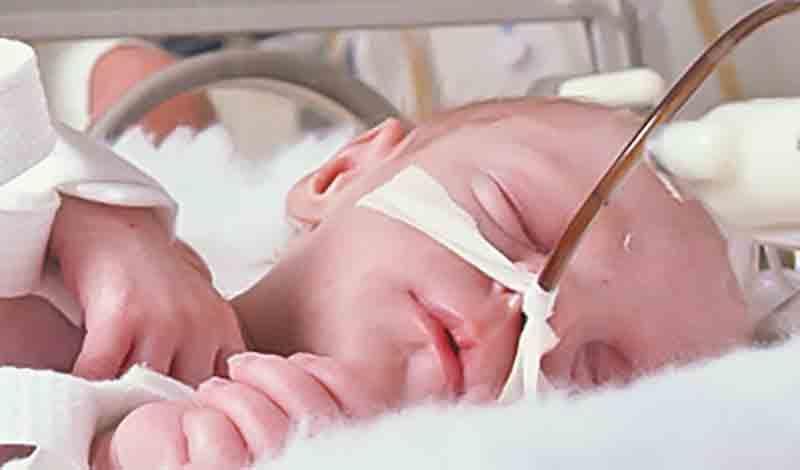 نوزاد تازه متولدبه دلیل عفونت ریه بستری شده است.