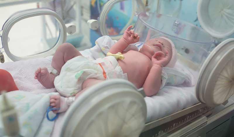 نوزاد تازهمتولد به دلیل بلع مکونیوم بستری شده است.