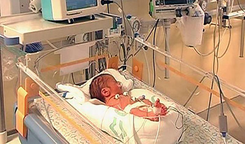 نوزاد تازهمتولد به دلیل نارس بودن و دیسترستنفسی بستری شده است.