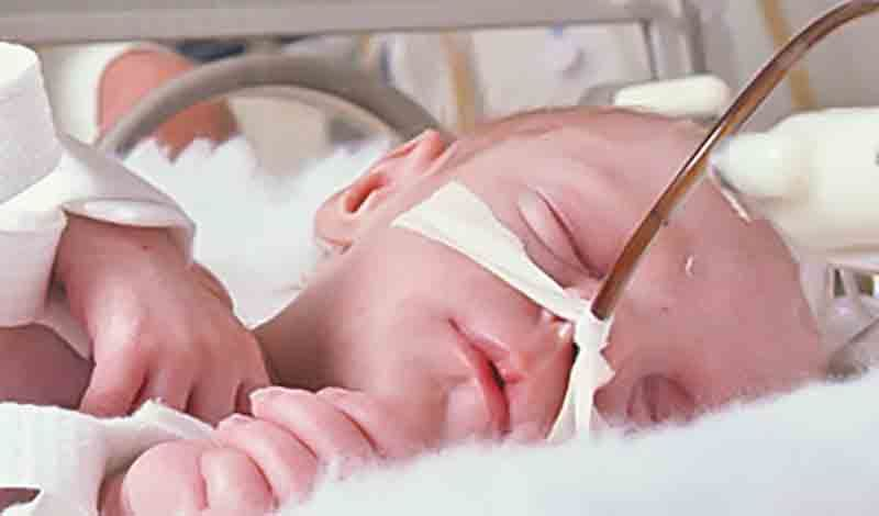 نوزاد تازهمتولد به دلیلدیسترس تنفسی بستری شده است.