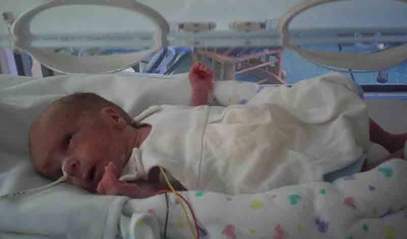 نوزاد تازهمتولدبه دلیلسمزدائیبستری شده است.