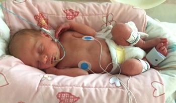 نوزاد تازهمتولدبه دلیلتنگی نفس بستری شده است.