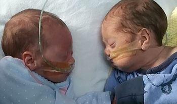 نوزاد تازهمتولد قل1 به دلیلنارس بودنبستری شده است.