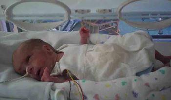 نوزاد تازهمتولد به دلیلمننگوسل بستری شده است.